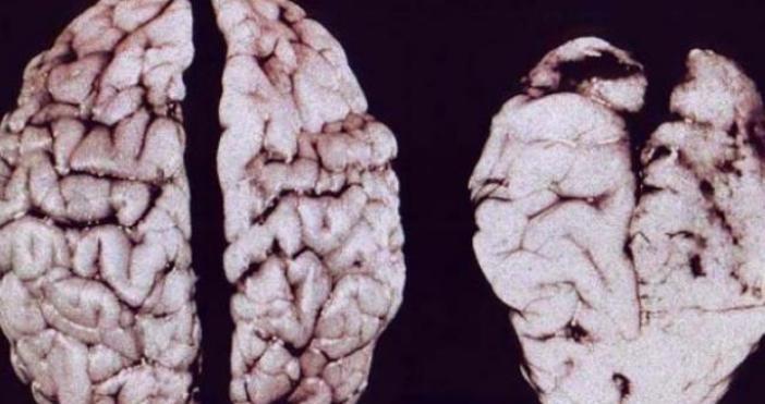 Доскоро се смяташе, че мозъчните клетки са краен брой и