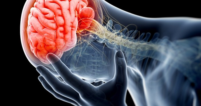 Инсултът е нарушение на мозъчното кръвообращение, характеризиращо се с внезапна