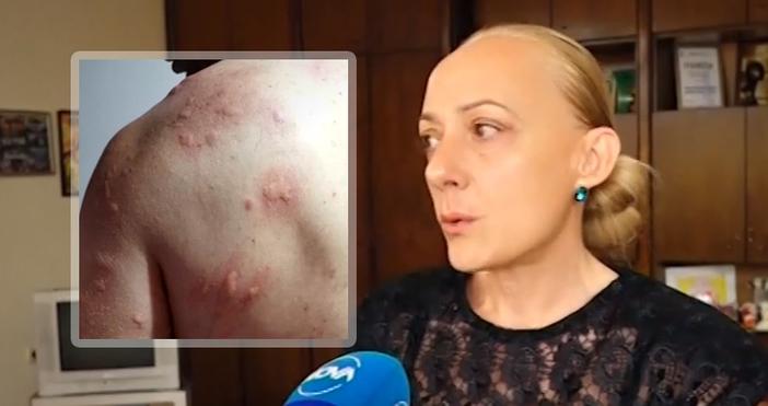 кадри: NOVAПоредна жертва на насекомите станал мъж, който карал колело