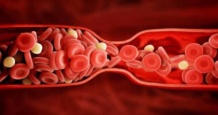 Всеки знае колко опасни са кръвните съсиреци в кръвоносните съдове.