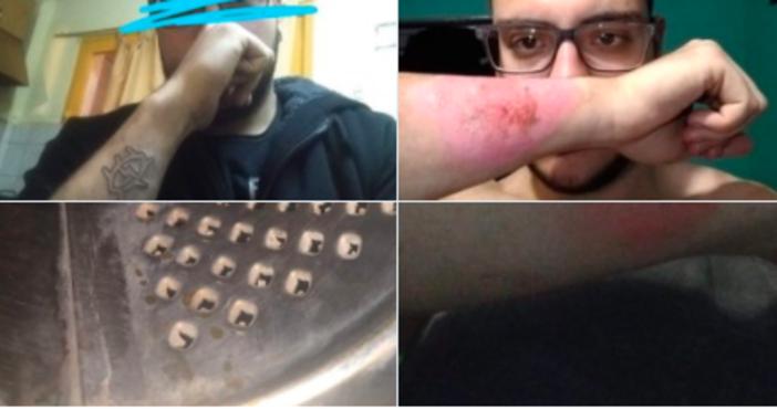 Снимка: Младеж използва ренде, за да премахне татуировка от ръката си и да стане полицай