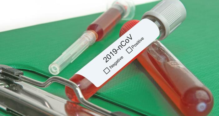 Заразените с коронавирус във Варна, които бяха установени вчера, са